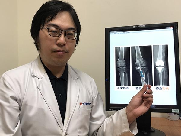 共用光田綜合醫院骨科部醫師蕭敬樺指出病患的左膝在術前圖中已重度退化疼痛致無法維持正常生活 7bc80