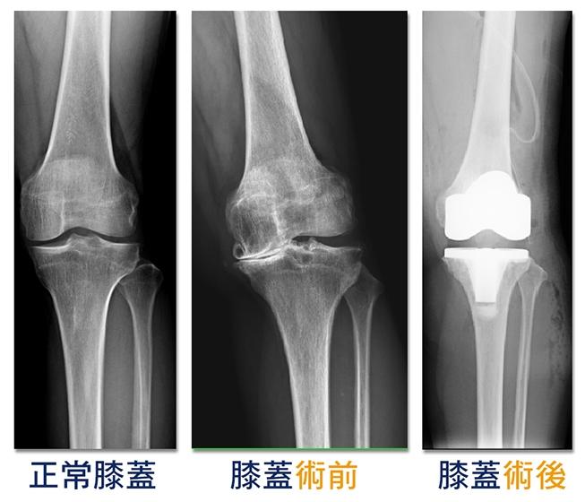 共用病患的左膝在術前圖中已達重度退化須透過人工關節置換圖右治療 fa922