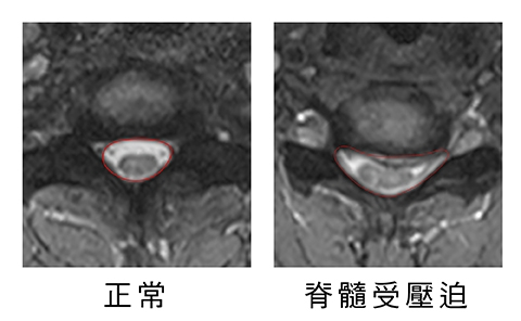 共用3透過核磁共振檢查患者頸椎5 6節椎間盤明顯突出壓迫神經 7b8a9