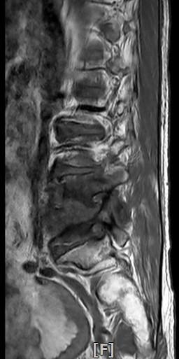 椎間盤嚴重被腐蝕位置僅一張共用 03429